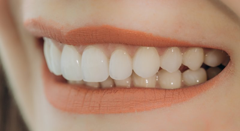 Porcelain veneers in Pittsburgh